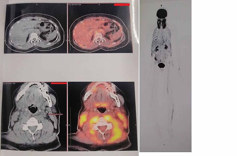 PET-CT-findings.