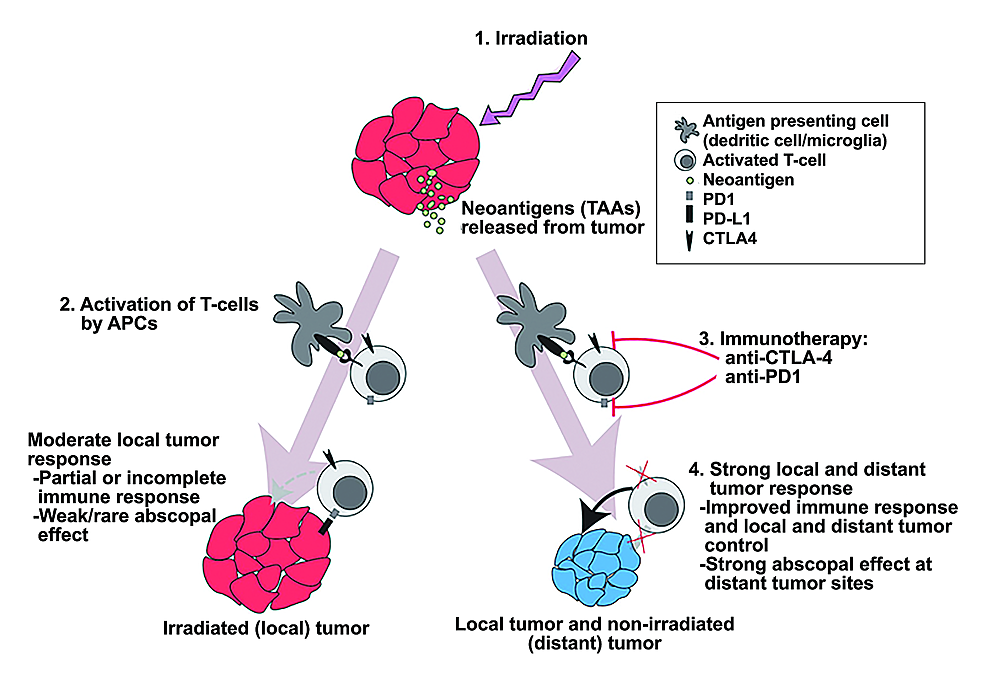 Model-of-increased-abscopal-response-in-combination-immunotherapy-and-radiosurgery