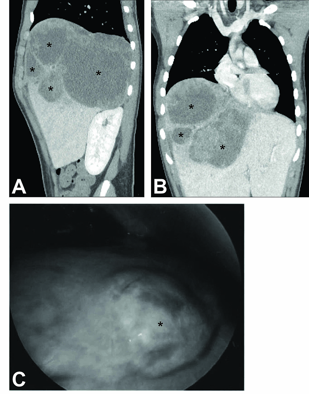 Visualization-of-the-Hepatic-Lesion