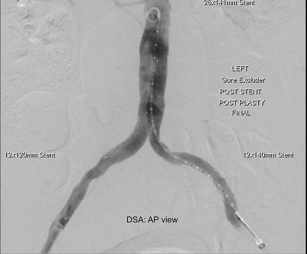 Completion-angiogram-following-endovascular-aneurysm-repair-(EVAR)