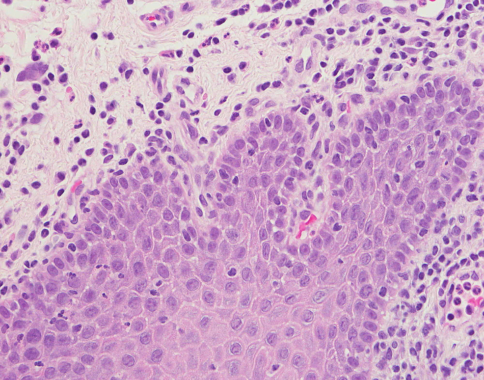 Histopathology-of-the-tongue-with-elongated-rete-pegs