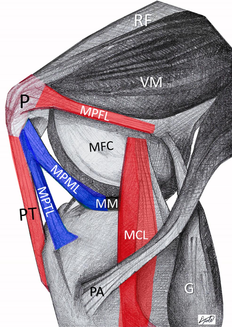 The-triangular-space-of-patellofemoral-dislocation-(red).-Patellar-dislocation-initiates-with-MPTL/MPML-rupture-(blue)