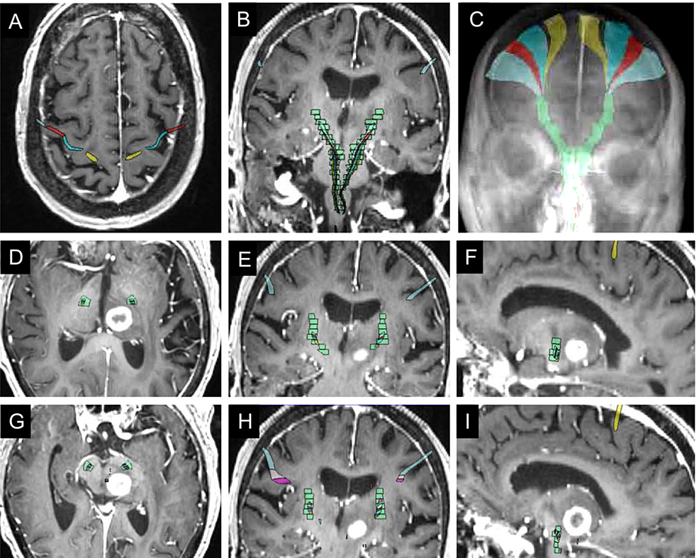 Proximity-of-target-metastasis-to-corticospinal-tracts-(CST)-using-co-registration-of-diagnostic-MRI-and-Anatom-e-atlas