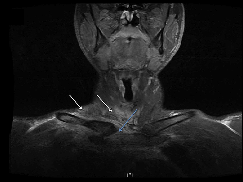 MRI-of-the-neck-and-SCJ-with-contrast.