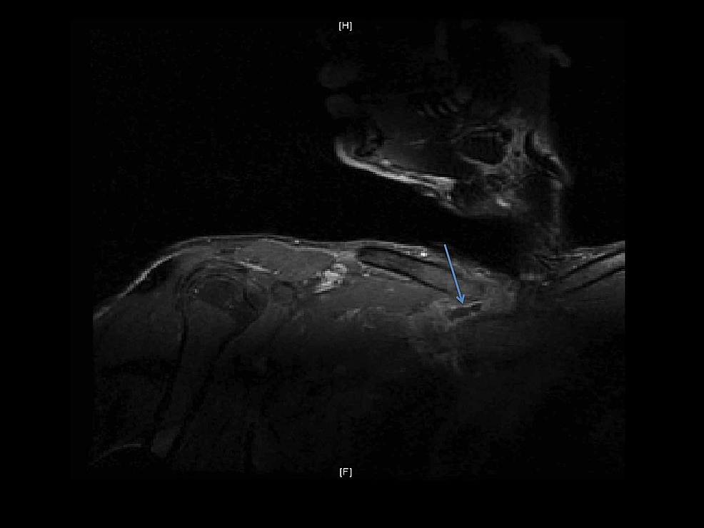 MRI-of-the-right-SCJ-with-contrast.