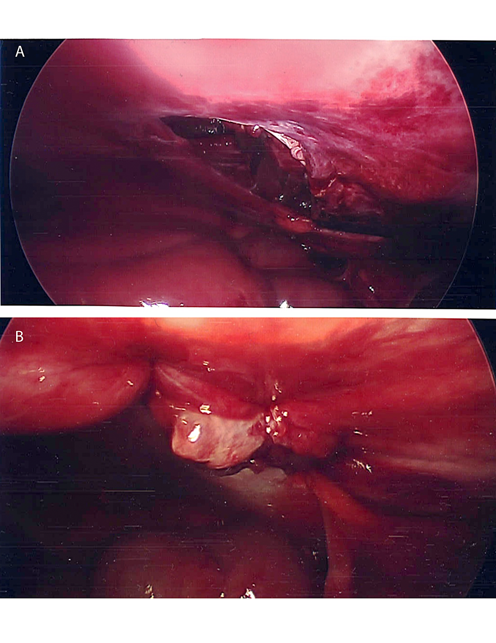 Laparoscopic-views-of-abdominal-wall-defect-(A)-before-closure-and-(B)-after-closure-with-interrupted-sutures-each-indicated-by-an-arrow.