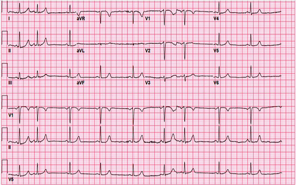 EKG-on-the-presentation.
