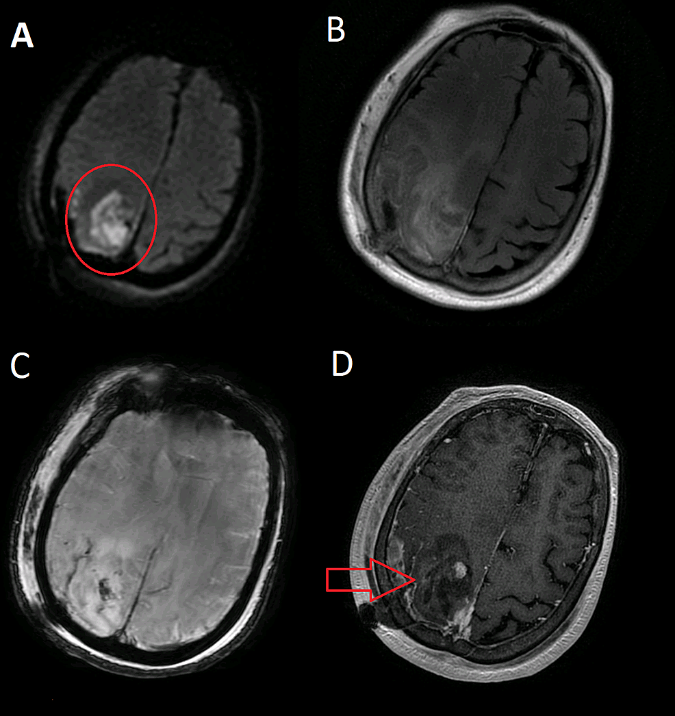MRI-of-the-brain-with-and-without-contrast