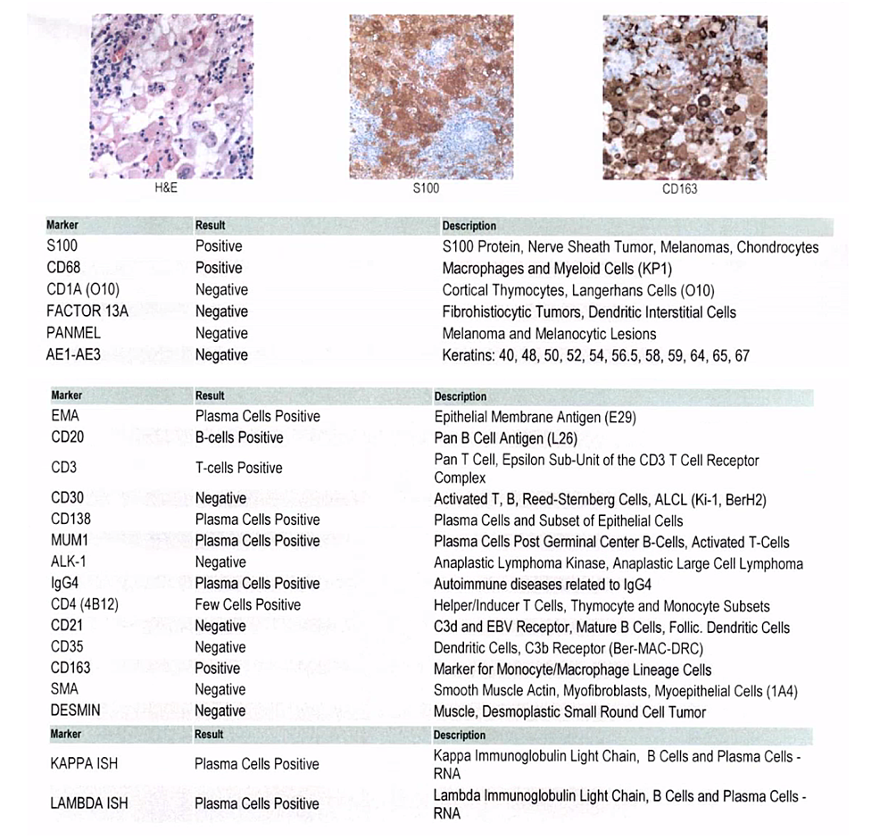 Slides-provided-show-H&E,-S100-and-CD163-staining;-of-note,-excisional-samples-were-positive-for-S100/CD68,-markers-classically-associated-with-RDD