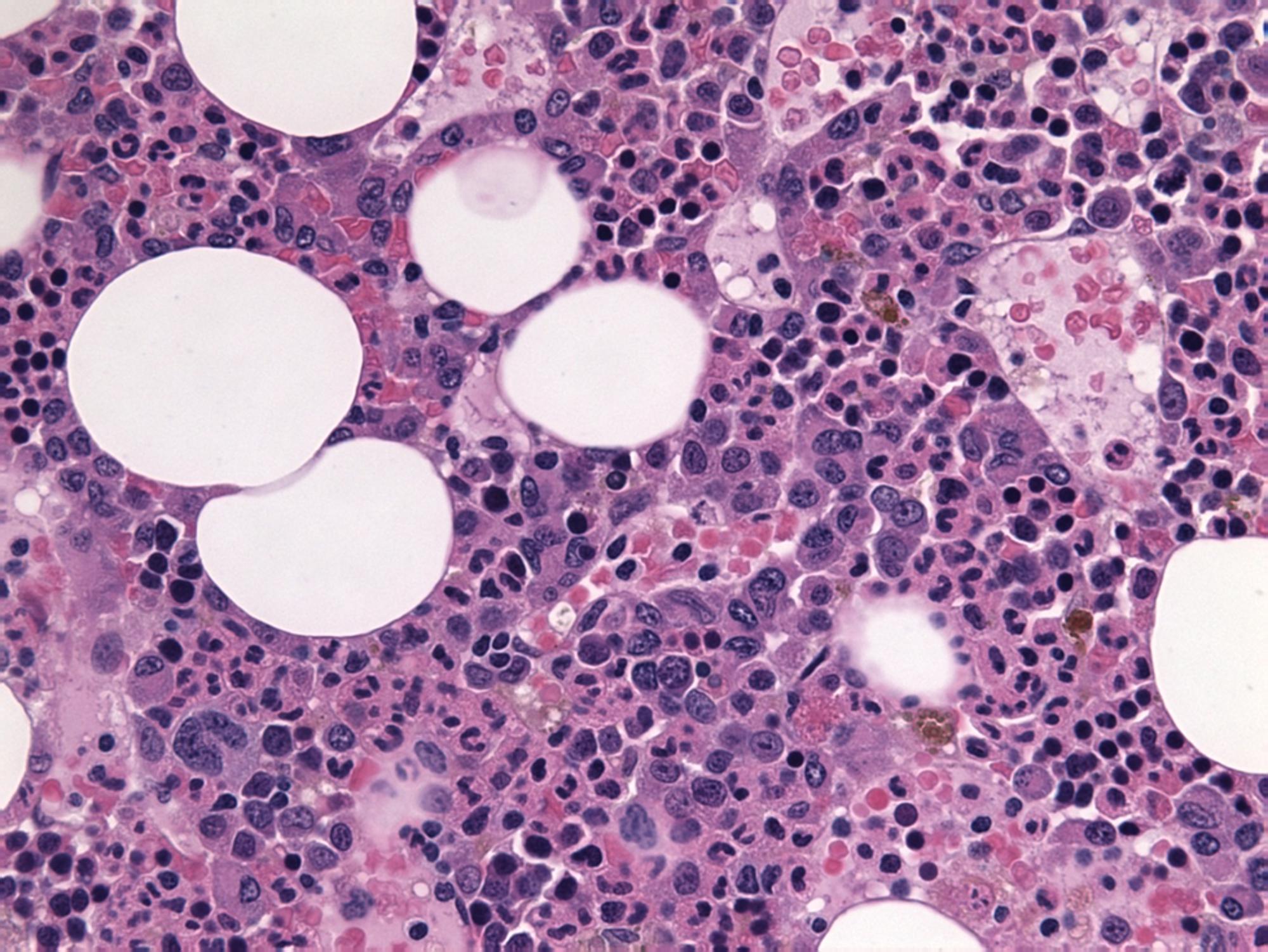 Cureus Multiple Myeloma Associated Chronic Inflammatory