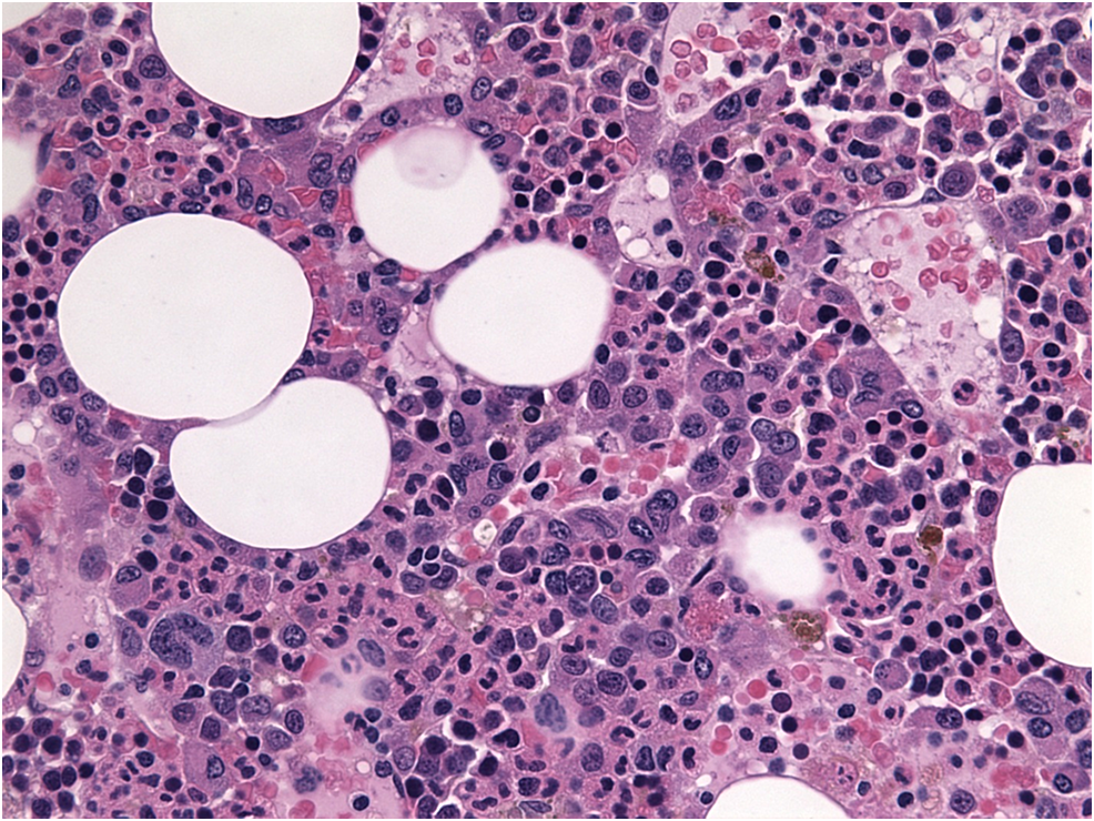 H-and-E-stain-showing-atypical-plasma-cells-with-coarse-chromatin,-nuclear-irregularities-and-multinucleated-forms