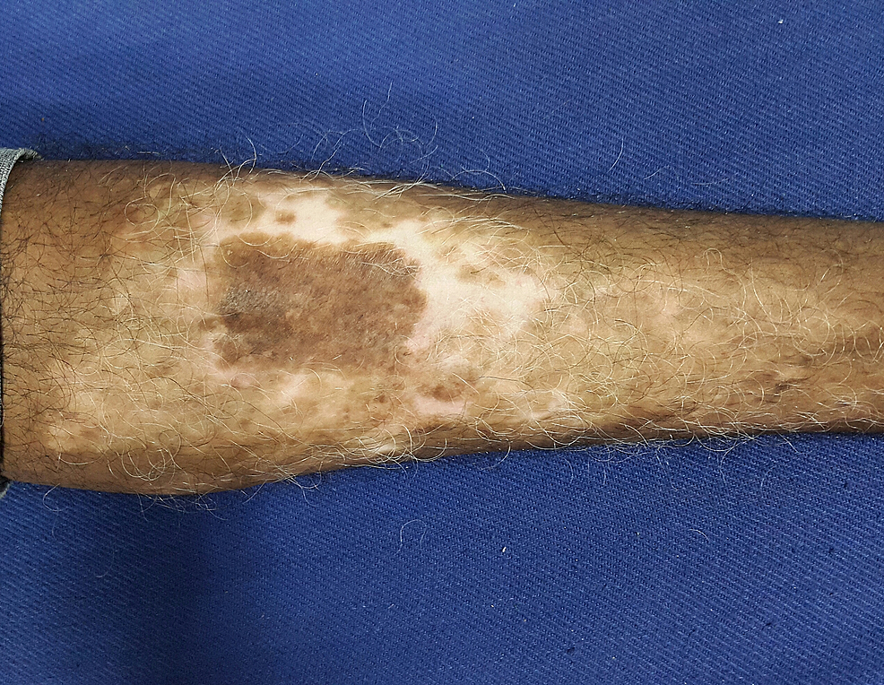The-recipient-site-at-the-end-of-20-weeks-showing-uniform-repigmentation-of-the-treated-site.