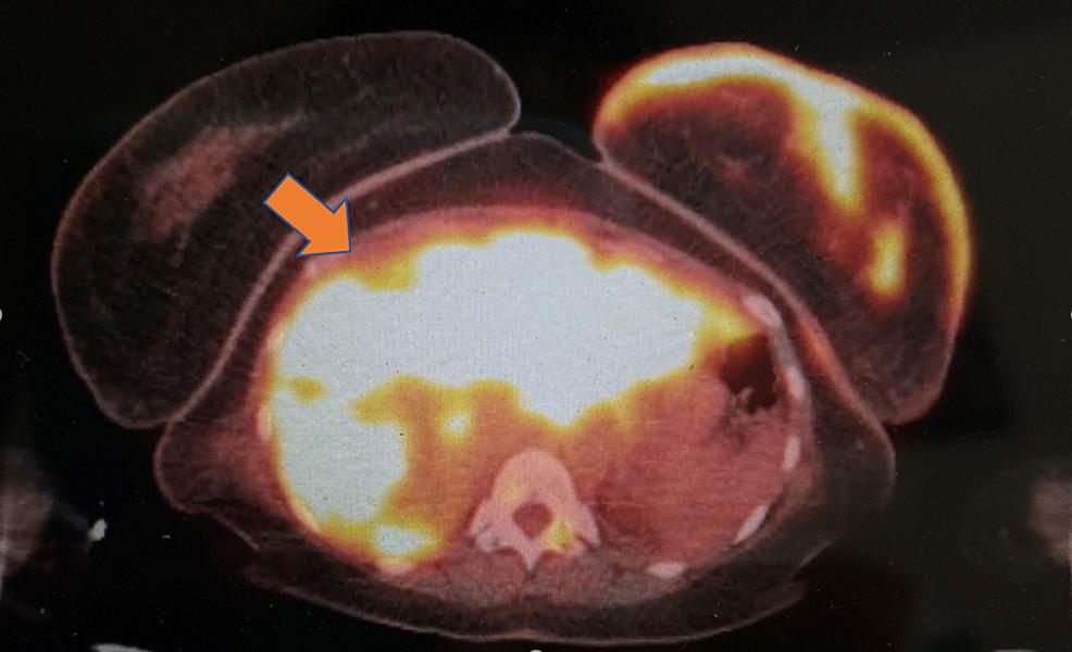 18-FDG-PET/CT-scan-(radiation-exposure-5.76-mGy)--------------