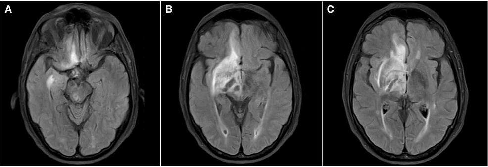 Brain-MRI-on-admission