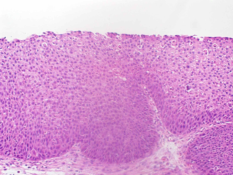 Left-maxillary-biopsy-showing-inverted-papilloma-with-mild-epithelial-dysplasia.