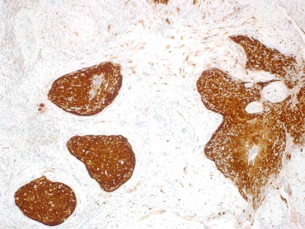 Left-middle-ear-biopsy-showing-diffusely-strong-p16-immunohistochemistry-staining.