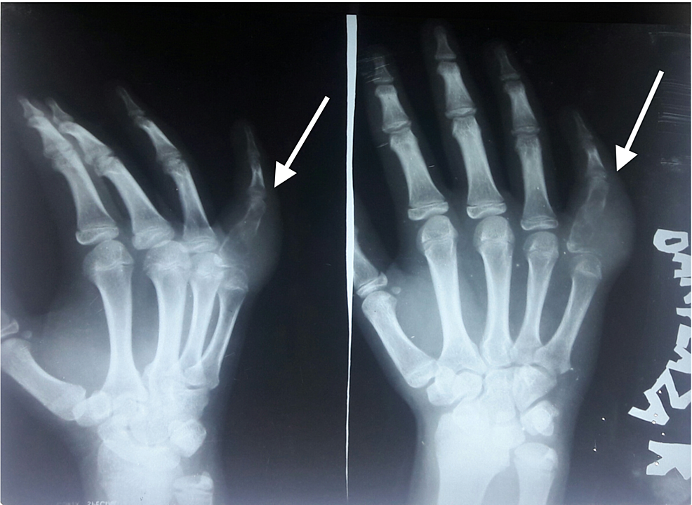 X-rays-showing-a-malignant-tumor-originating-from-bone-and-infiltrating-the-soft-tissue-(white-arrow).