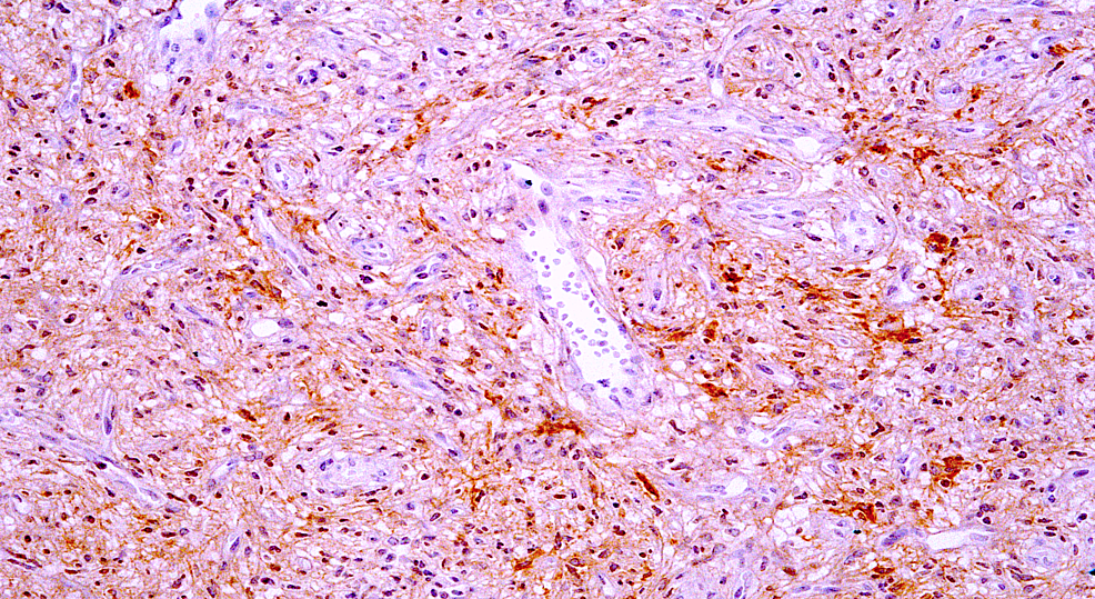 CD34-immunostain-is-positive-in-the-tumor-cells-with-variable-staining-intensity-(200x).