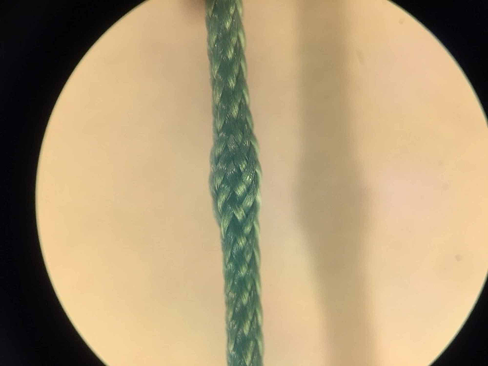 Microscopic-inspection-of-suture-deformation:-Thickened-area-of-sutures