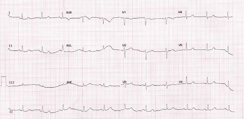 Normal-EKG-six-years-before-presentation.-