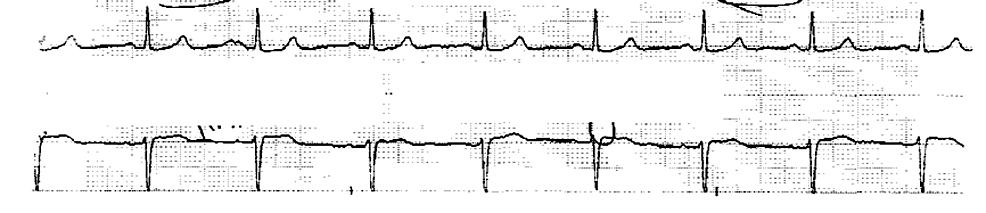 Normal-telemetry-strip-three-years-before-presentation.-