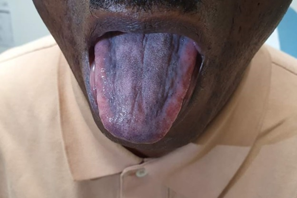 Hyperpigmentation-of-the-tongue.-