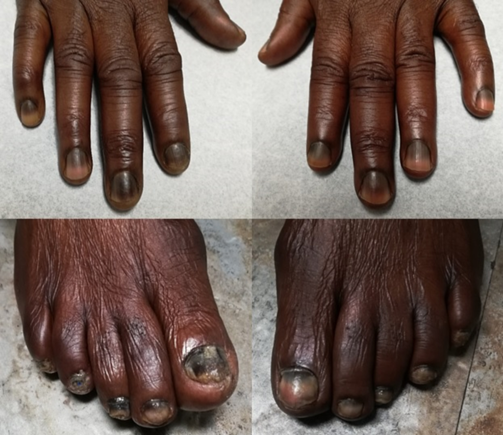 Hyperpigmentation-of-the-skin-over-the-knuckles,-and-transverse-hyperpigmentation-of-all-the-nails.-