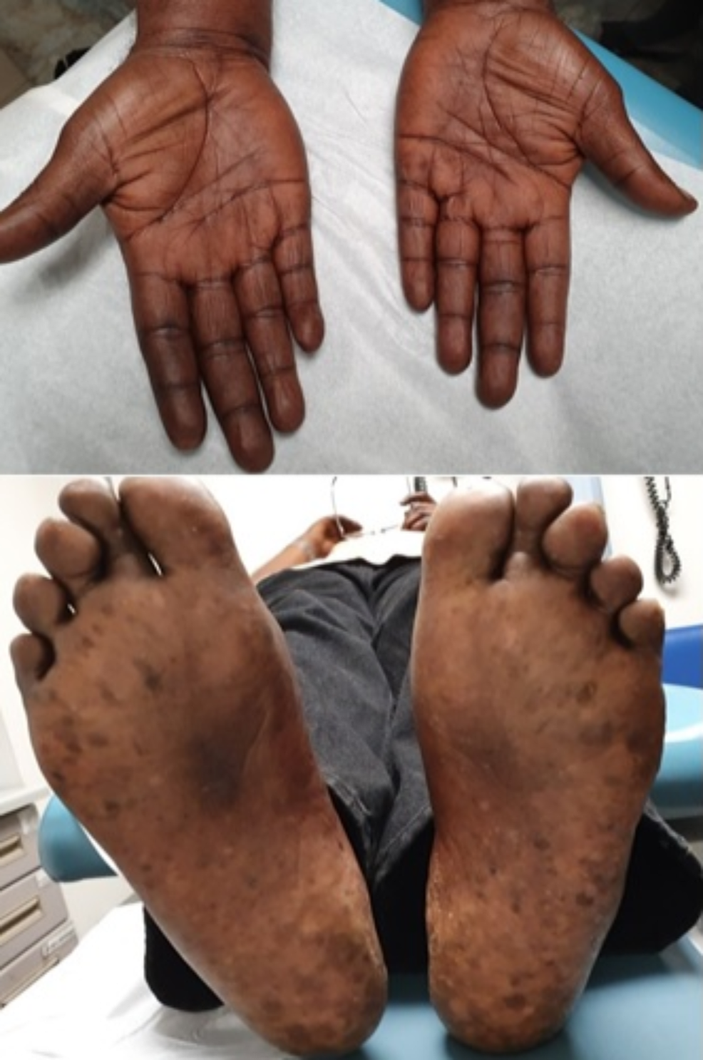 Hyperpigmentation-of-the-palmar-and-plantar-skin.-