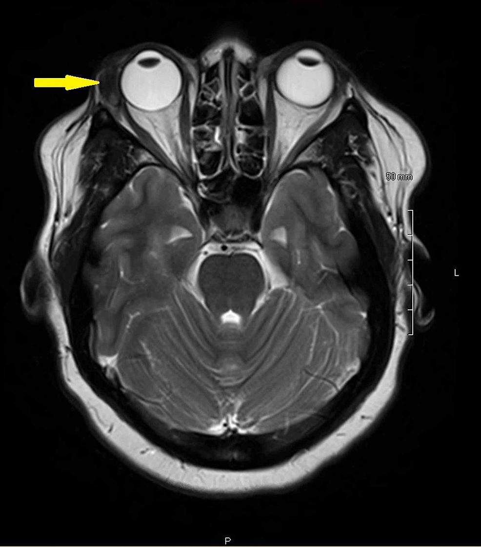 MRI-brain-and-orbit-without-contrast