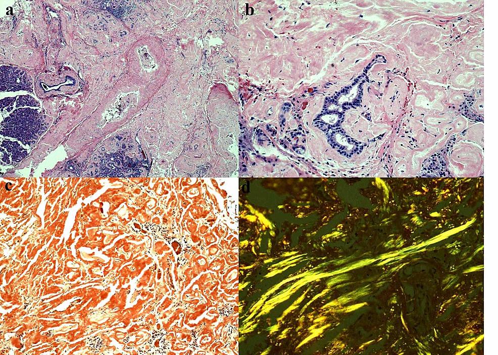 Histopathology-slides-of-biopsy-specimen