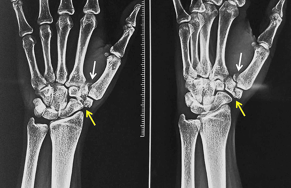 Anteroposterior-and-oblique-radiographs-of-the-wrist-and-hand