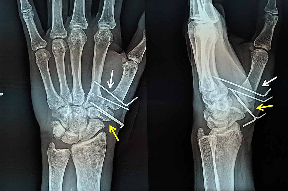 Anteroposterior-and-lateral-radiographs-of-the-hand-at-six-weeks-following-surgery-showing-good-fracture-healing