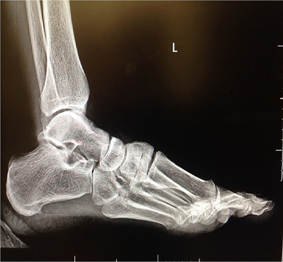 Preoperative-gravity-stress-lateral-radiograph-of-the-left-foot-demonstrating-widening-of-the-first-metatarsal-cuneiform-joint-due-to-dorsal-capsular-disruption
