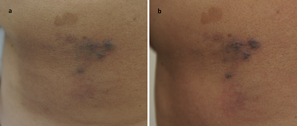 Classic-Kaposi's-sarcoma,-affecting-the-middle-region-of-left-mid-back.