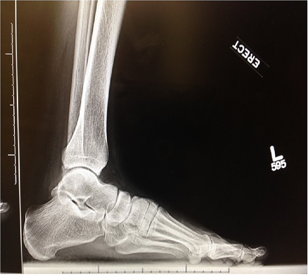 Preoperative-weight-bearing-lateral-radiograph-of-the-left-foot-demonstrating-reduction-of-the-first-metatarsal-cuneiform-joint-despite-dorsal-capsular-disruption-and-instability-of-the-joint
