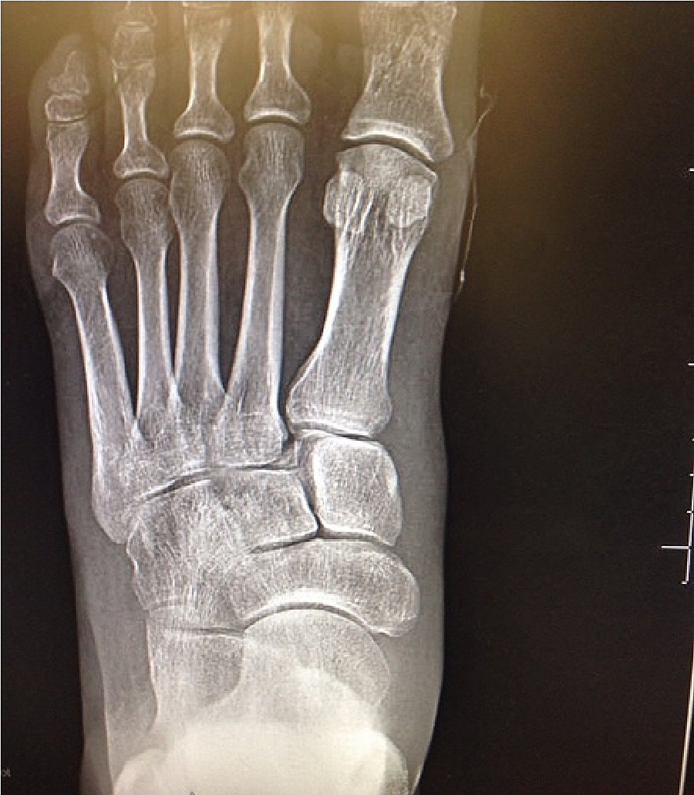 Preoperative-anteroposterior-(AP)-view-of-the-left-foot-demonstrating-non-displaced-fracture-of-the-proximal-phalanx-of-the-first-toe-and-subluxation-with-fracture-of-the-base-of-the-second-metatarsal-('fleck-sign')-indicative-of-Lisfranc-injury