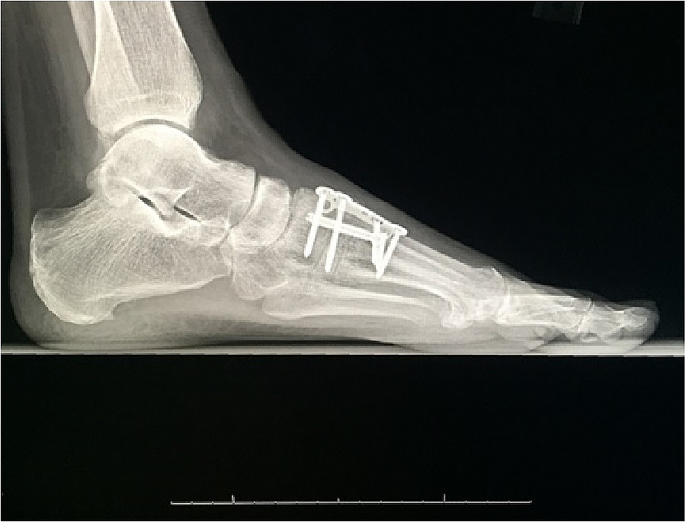 Postoperative-weightbearing-lateral-radiograph-of-the-left-foot-demonstrating-joint-sparing-stabilization-of-the-first-metatarsal-cuneiform-joint-and-Lisfranc-joint-fixation-with-a-screw