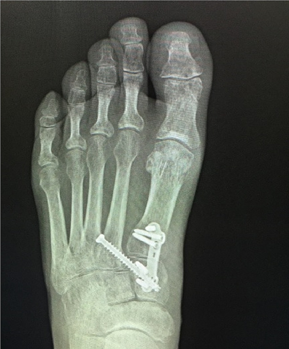 Postoperative-weightbearing-anteroposterior-(AP)-view-of-the-left-foot-demonstrating-reduction-and-jointsparing-fixation-of-the-first-metatarsal-cuneiform-joint-and-fixation-of-the-Lisfranc-joint-with-a-screw