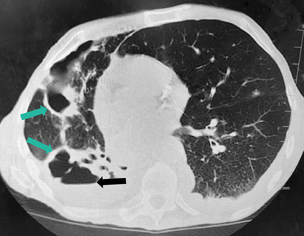 Second-CT-of-the-chest-without-contrast