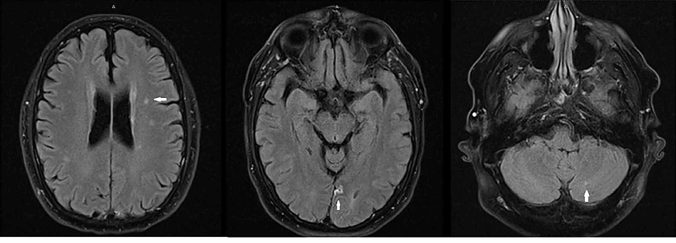 Brain-MRI-without-contrast-showing-acute-ischemic-infarcts-in-the-left-thalamus-(extreme-left),-the-medial-occipital-lobe-(middle),-and-the-cerebellum-(extreme-right)