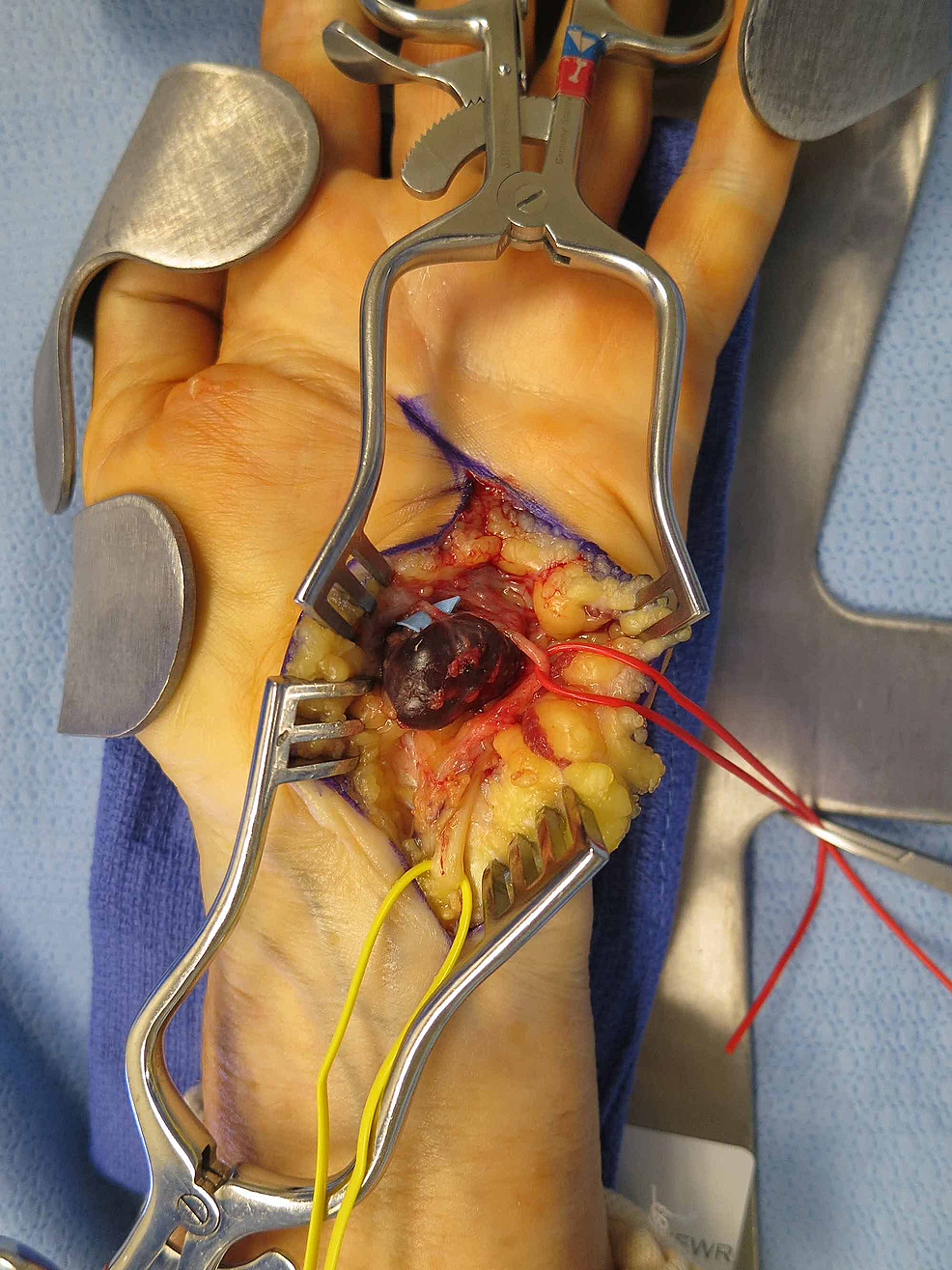 Intra-operative-view