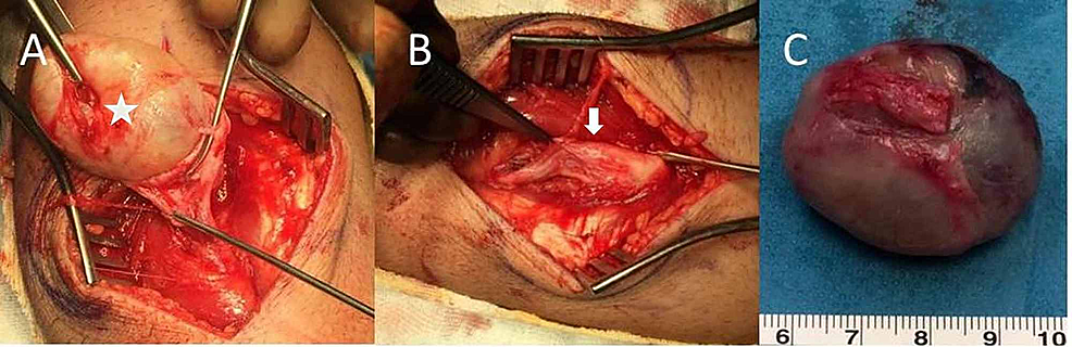 Intraoperative-images-of-the-tumor-