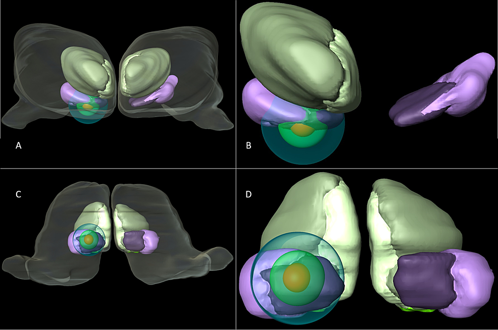 Three-dimensional-reconstruction-of-the-CM-Pf-and-isodose-curves
