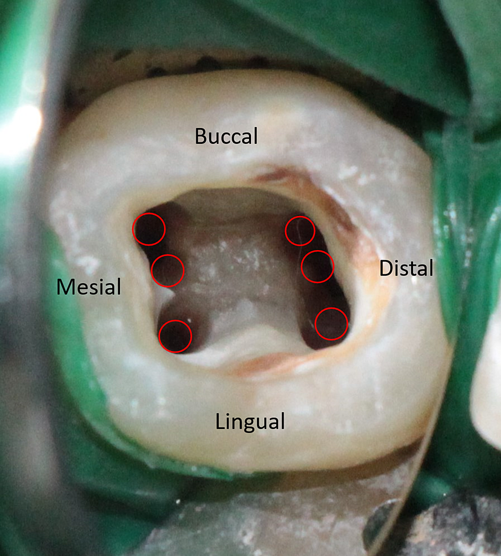 Access-opening-showing-six-distinct-canal-orifices
