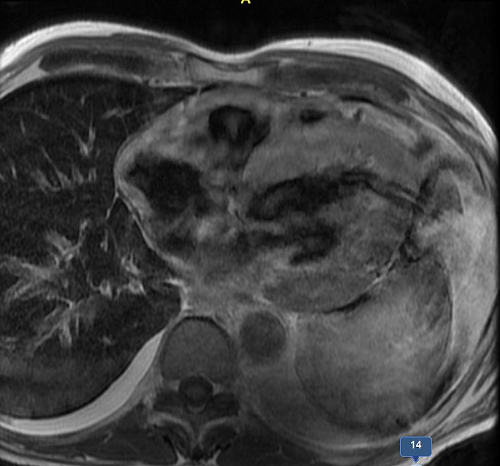 Cardiac-MRI-with-late-gadolinium-enhancement