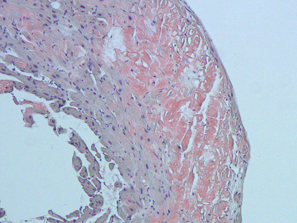 Congo-red-staining