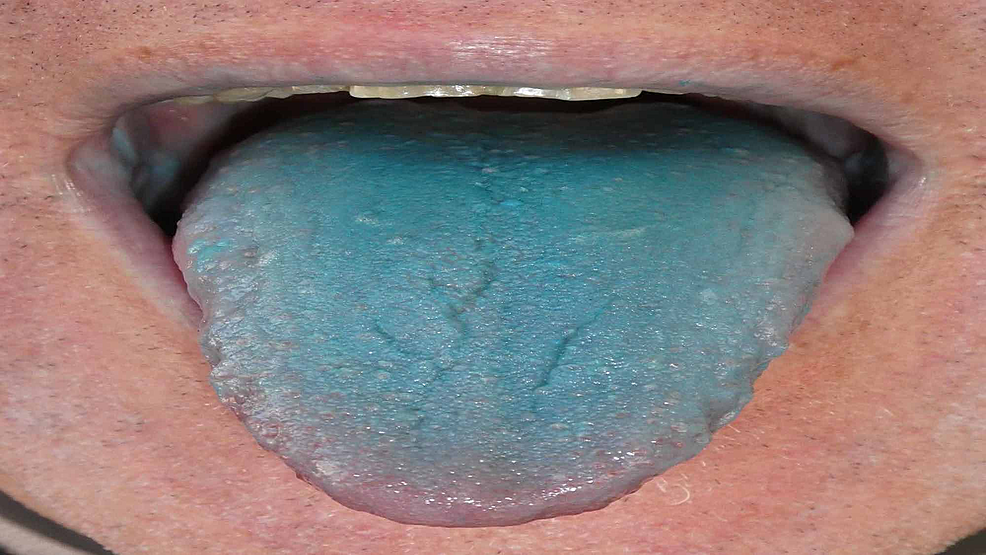 Cureus | Acquired Asymptomatic Blue Tongue: A Report of Exogenous  Agent-associated Tongue Dyschromia and Review of Blue Tongue Etiologies