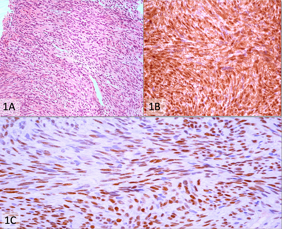 Schwannoma-(A)-Hematoxylin-and-eosin-stain-(200x),-(B)-Strong-and-diffuse-positivity-for-S100-immunostain-(400x),-(C)-3+-positivity-for-TLE1-immunostain-(400x)
