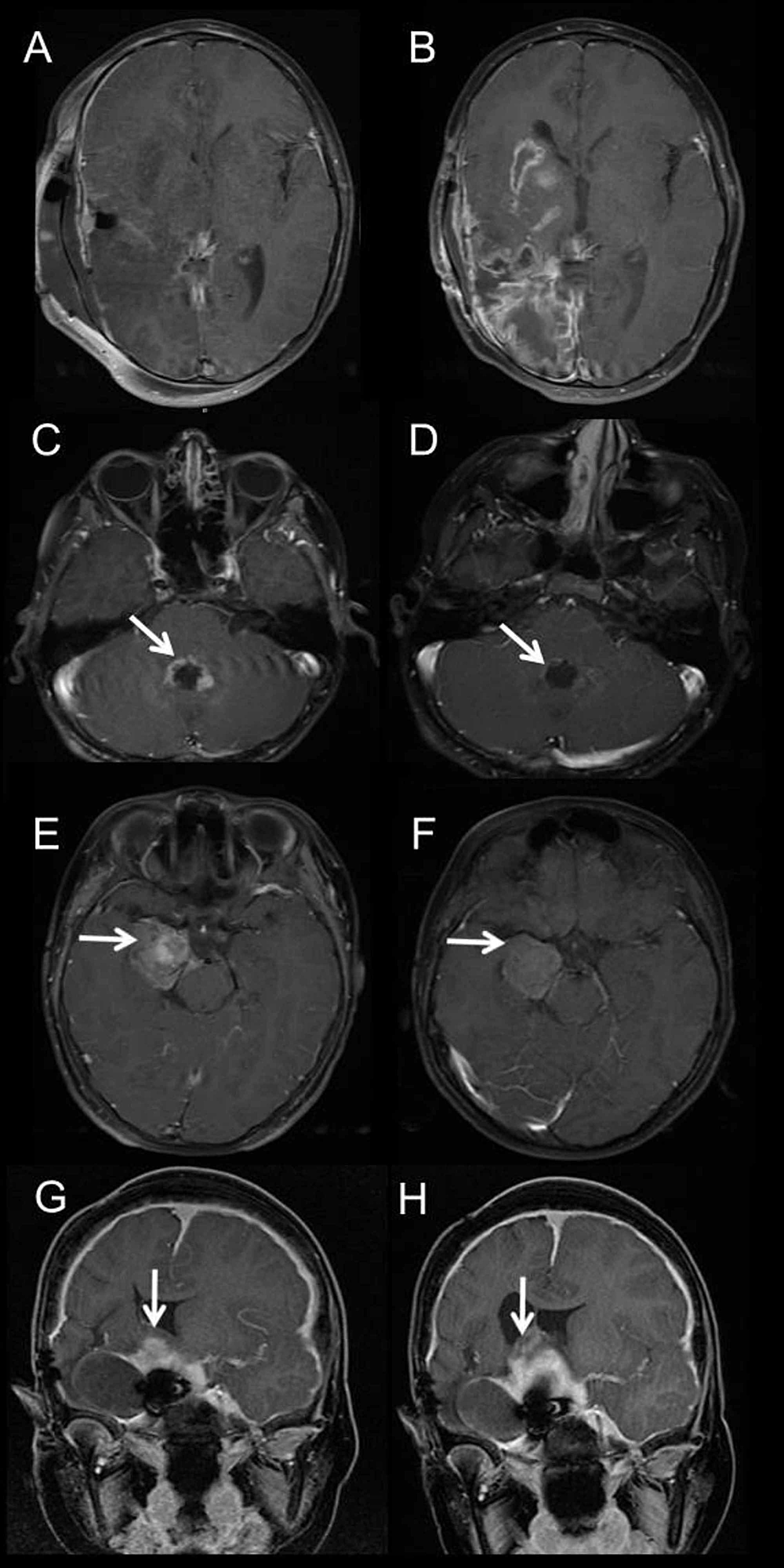 Magnetic-resonance-imaging-findings-pre--and-post-targeted-therapy