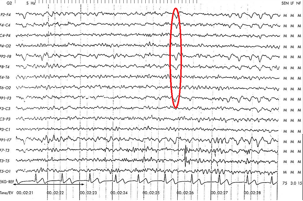 Electroencephalogram-showing-right-temporo-parietal-spikes-(circled)
